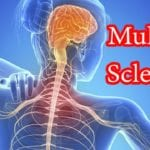 How Multiple Sclerosis Affects Daily Life