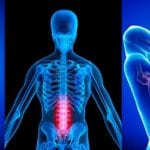 How Chiropractic May Help Treat Sciatica