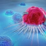 5 Cancer Treatment Myths Debunked