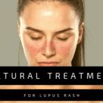 Natural Treatment for Lupus Rash