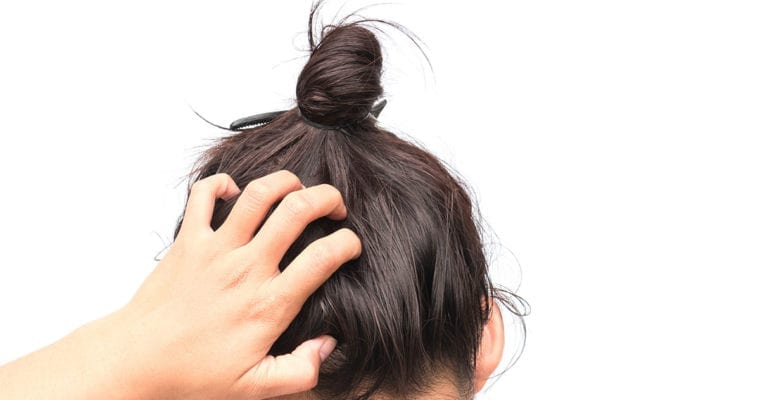 Top Causes of an Itchy Scalp in Summer & Quick Fixes