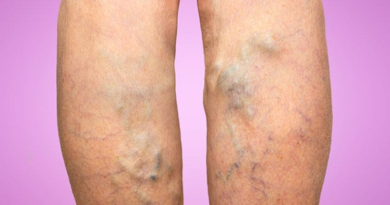 Tips for Managing Varicose Veins