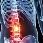Spinal cord injury - symptoms and causes