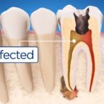 5 Useful Tips if You Are Going to Get Root Canal Treatment