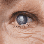 Bulging Eyes, Cataracts, and More: A Lowdown of Common Eye Conditions