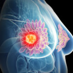 5 Tips to Take Care of Your Breast