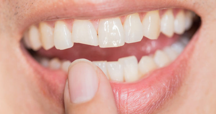 Fixing Teeth and Jaw Issues With Myobrace
