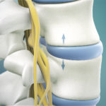 Everything You Need To Know About Spinal Decompression Treatment