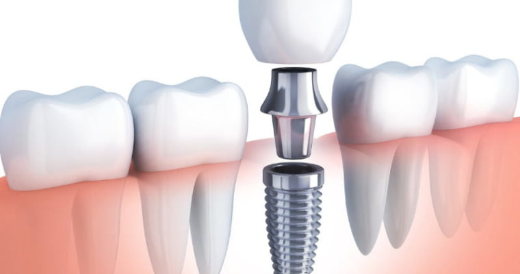 The Best Steps You Can Take To Lower Your Dental Implant Costs