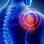 What is the Best Treatment for Frozen Shoulder?