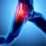 Diagnosing and Understanding Hip Pain