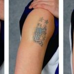 Interesting Facts No One Tells You About Tattoo Removal