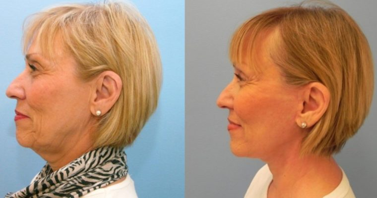 What You Need to Know About Neck Lift Surgery