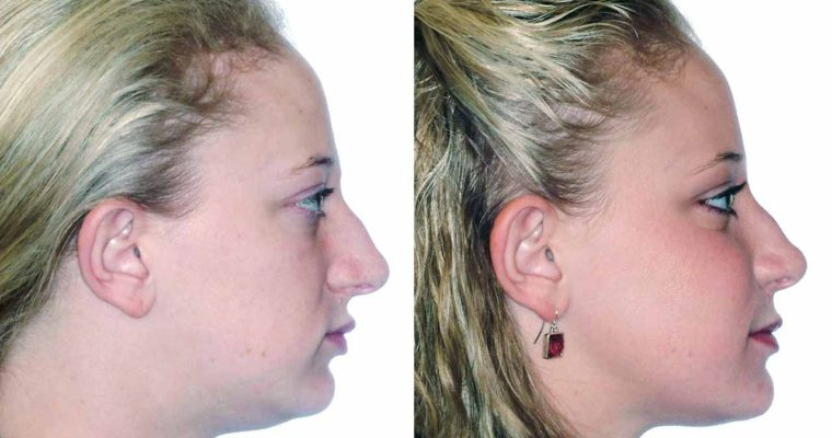 Everything you need to know about Corrective Jaw Surgery