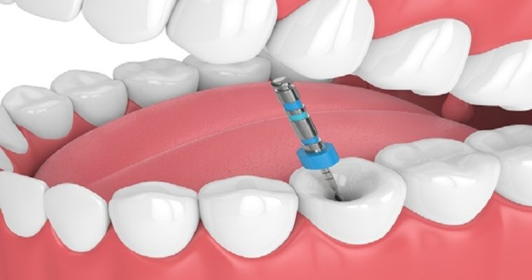 Answering All Of Your Questions About Root Canal Recovery