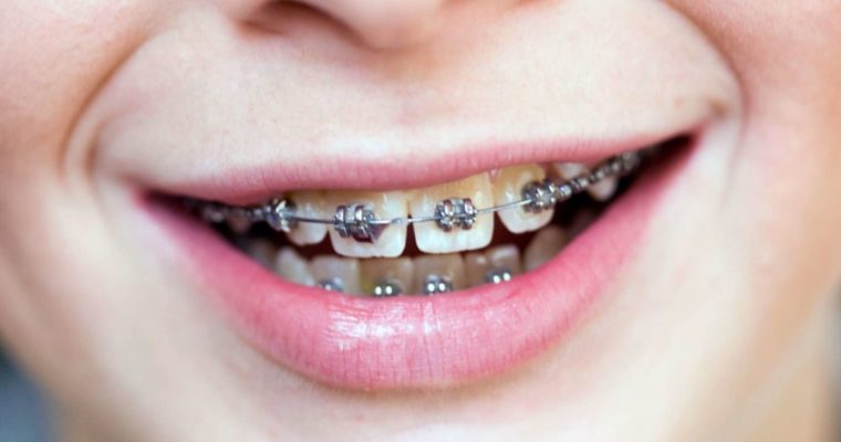 Reasons Why You Might Need Braces