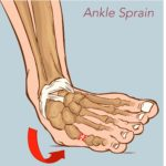 What to Expect After Spraining Your Ankle
