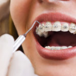 From Costs to Longevity: What Can You Expect From Orthodontics?