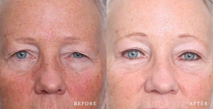 What is Blepharoplasty And What You Should Know
