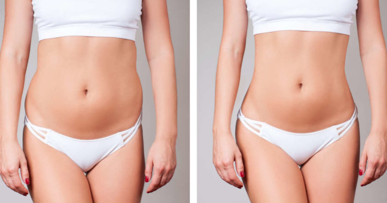Liposculpture And Thread Lifts, A Great Combo For A Toned Body
