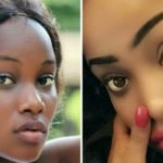Skin Lightening Injections – What You Need To Know