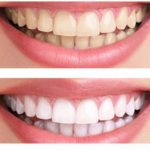 Little Known Teeth Whitening Tips