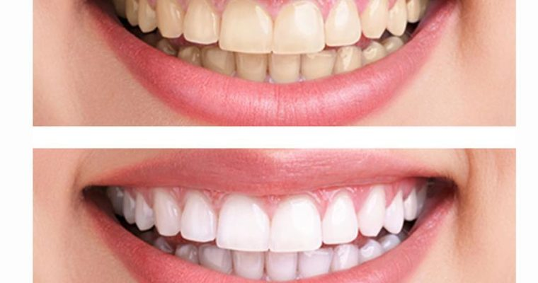 Little Known Teeth Whitening Tips