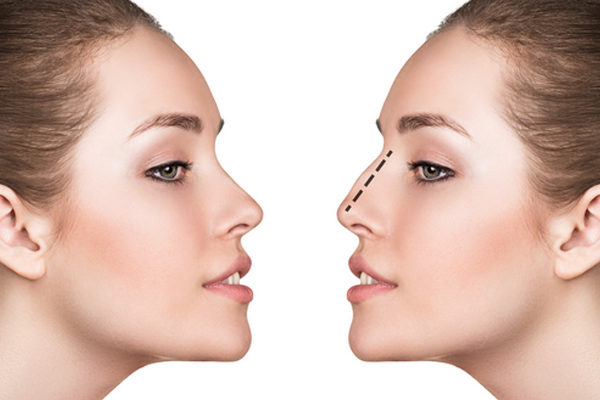 How to Know If You Are a Good Candidate for Rhinoplasty