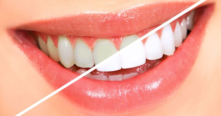 8 Reasons Why You Visit a Cosmetic Dentist to Get Your Teeth Whitened