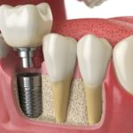 Dental implants – Benefits and success rates