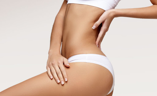 Liposuction, What You Should Know