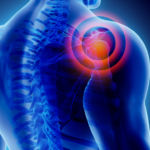 How to relieve shoulder pain at home