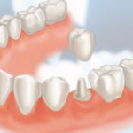 Porcelain Crowns: All the Pros and Cons