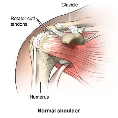 How to Manage a Rotator Cuff Injury