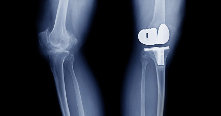 Advantages of Robotics-Assisted Knee Replacement