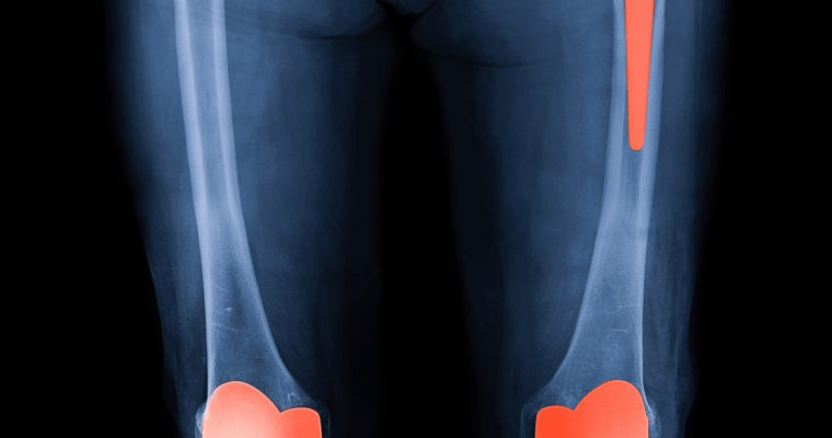 5 Things You Need To Know About Hip Replacements