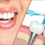 Dental Implant Treatment - Why You Shouldn't Be Nervous