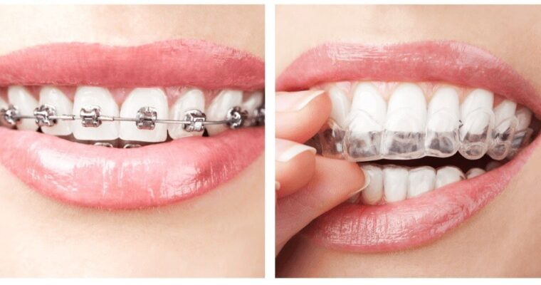 Why do you need to make the switch from traditional braces to clear aligners?