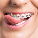The Right Care for Your Dental Needs: 7 Signs of a Good Orthodontist