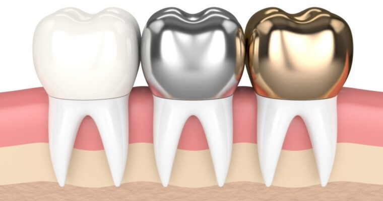 Dental Crowns and What You Should Know