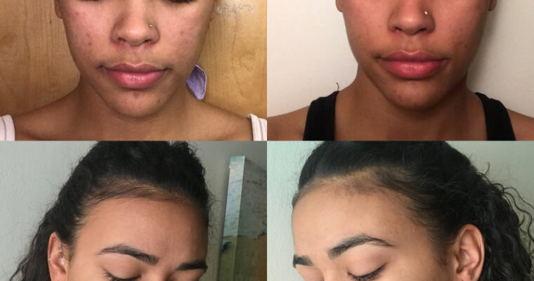 Skin Transformation Goals: How to Step up Your Beauty Routine