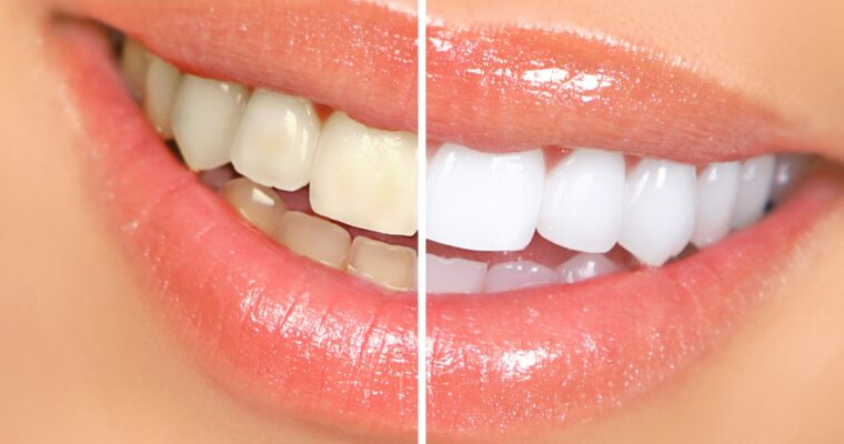 Teeth Bleaching at Home: 6 Proven Ways to Do It Naturally That Get the Results
