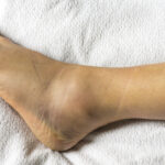 How to Heal a Sprained Ankle Faster