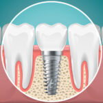 What Are the Different Types of Dental Implants?