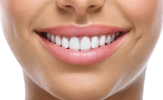 Top 7 Simple Ways to Have Pearly White Teeth
