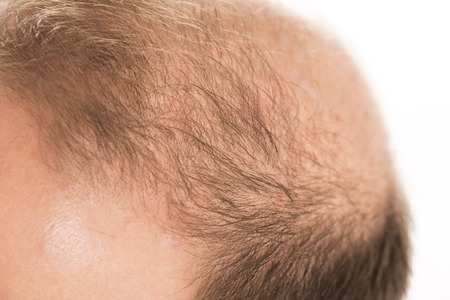 Understanding how drugs get into your hair follicles