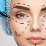 Love the Skin You're In! 4 Benefits of Getting Plastic Surgery