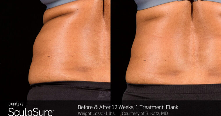 How to Get the Most from SculpSure Treatments
