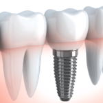 Dental Implant vs Root Canal: Which Is Better?