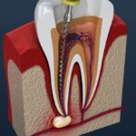 When Do You Need a Root Canal? A Simple Guide to Root Canals